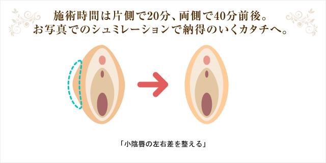 施術時間は片側で20分、両側で40分前後。お写真でのシュミレーションで納得のいくカタチへ。 「小陰唇の左右差を整える」