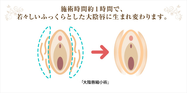 施術時間約1時間で、若々しいふっくらとした大陰唇に生まれ変わります。 「大陰唇脂肪注入」