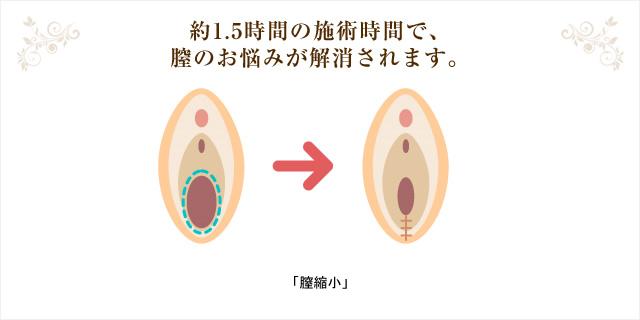 約1.5時間の施術時間で、膣のお悩みが解消されます。「膣縮小」