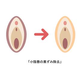 小陰唇の黒ずみ除去