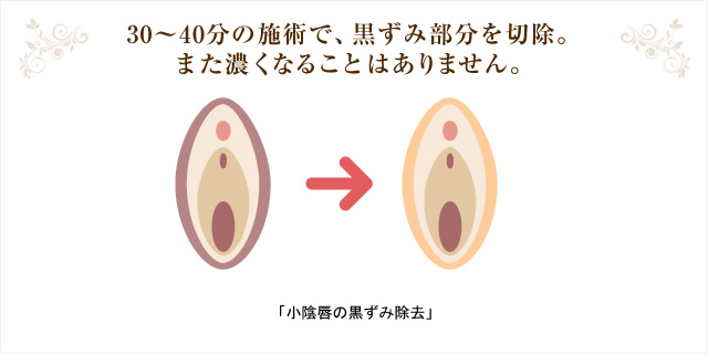 30?40分の施術で、黒ずみ部分を切除。また濃くなることはありません。「小陰唇の黒ずみ除去」