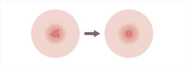 モントゴメリ腺切除のイメージ